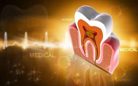 the section: Digital illustration of  teeth cross section   in  colour  background