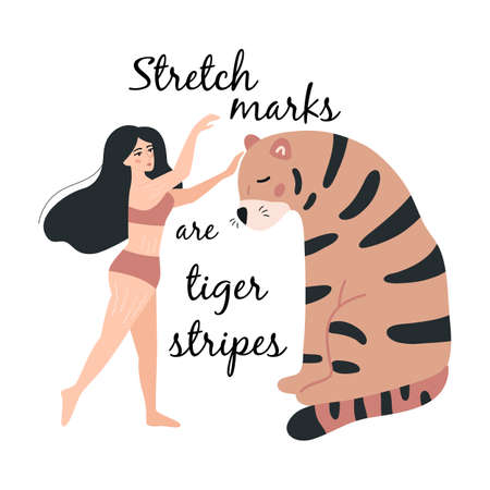 Body positive concept. Young woman with stretch marks on skins. Love your body. Take care of yourself. Motivation card. Stretch marks are tiger stripes. Vector illustration. 일러스트