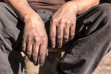 manos sucias: Carboneros hombre del trabajador con las manos sucias.