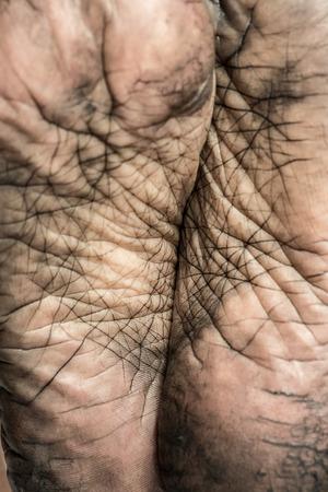 close p: Close up of a human foot skin texture. Stock Photo