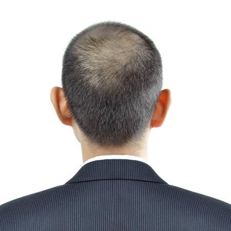 Hair thinning symptom on a man head - sign of hair loss photo