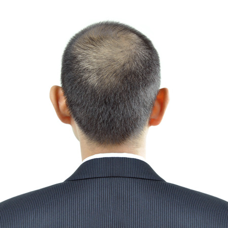 in behind: Hair thinning symptom on a man head - sign of hair loss