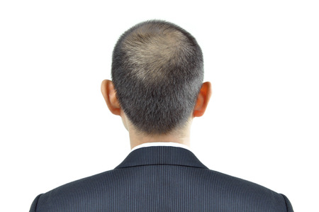 thinning: Hair thinning symptom on a man head - sign of hair loss