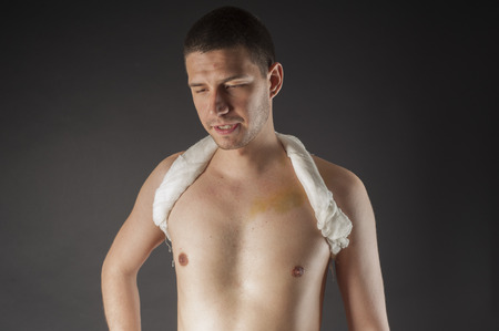 immobilize: Clavicle fracture and  immobilize bandage Stock Photo