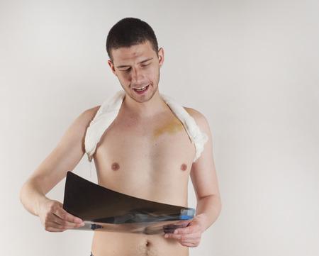 fractura: fractura de clav�cula e inmovilizar vendaje