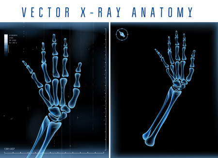 x rays negative: Vector 3D X-ray transparent hand  view on a black background