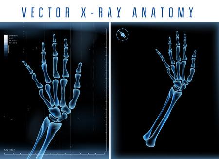 Vista la mano transparente vector 3D X-ray en un fondo negro
