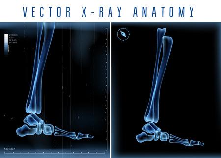 huesos: De rayos X del vector 3D visión transparente de la pierna sobre un fondo negro Vectores