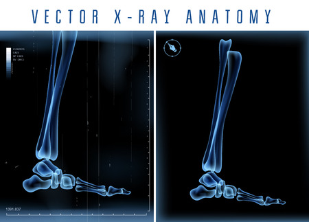 feet care: Vector 3D X-ray transparent leg view on a black background Illustration