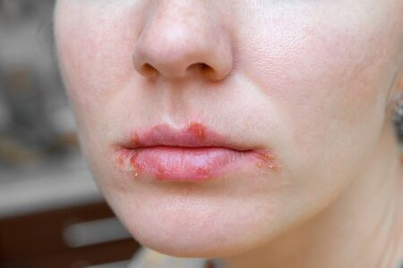 Herpes virus on the lips of young woman. Peeling and remaining blisters on skin.