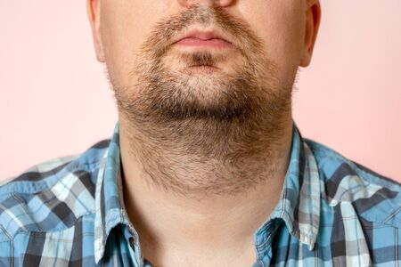 Portrait of young man with unformed, untrimmed, overgrown stubble. Hair on face and neck. Short beard. Imagens