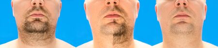Before and after shaving. collage of young man with unformed, untrimmed, overgrown stubble, hair on his face and neck, half and with completely shaved beard. Isolated on blue background. Imagens
