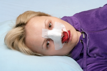 Girl in a blood-stained bandage after operation on a nose.