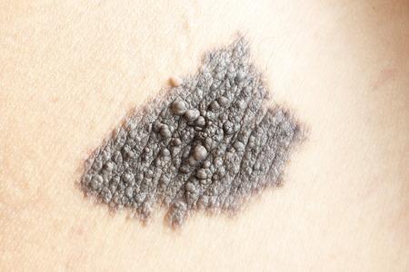 lesions: Birthmark