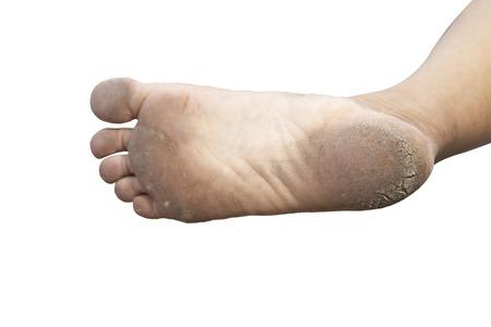 Cracks on Heels isolated white background.