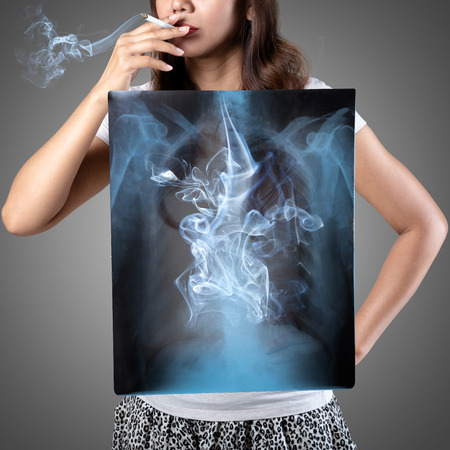 Femaie smoking with x-ray lung, Isolated on grey background Stock Photo