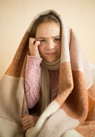 varicela: Retrato de picaz�n ni�a con varicela