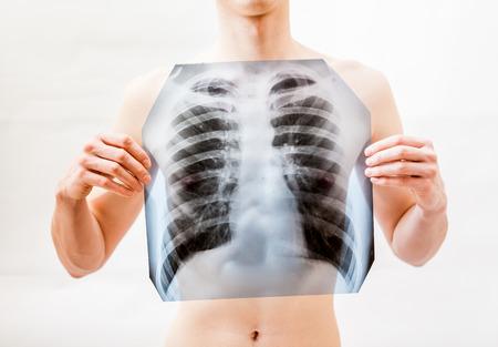 atmung: Closeup Schuss von jungen Mann, der x-ray der Lunge über der Brust