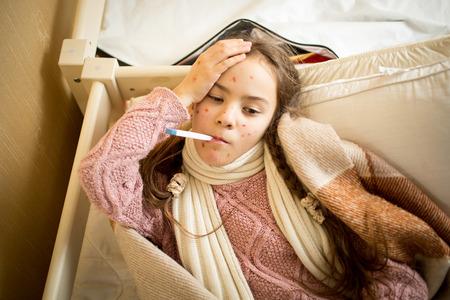 Portret van zieke meisje met waterpokken in bed lag en het meten van de temperatuur