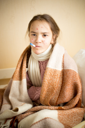 chickenpox: Portrait of sick girl with chickenpox measuring temperature with mouth thermometer