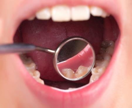 karies: tandvård hos tandläkaren Stockfoto