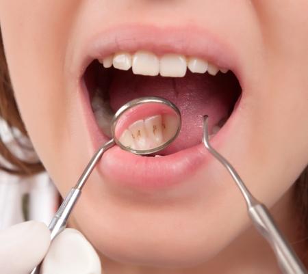 placa bacteriana: tratamiento dental en el dentista Foto de archivo