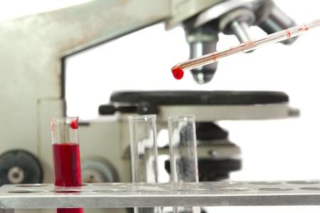 Analyse von Blut auf weißem Hintergrund