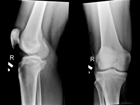 Schwarz-Weiß-Foto von Röntgenaufnahmen des menschlichen Kniegelenken Standard-Bild