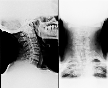 True colour X-Ray film of neck - front and side photo