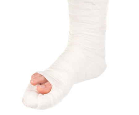 leg in a plaster cast on a white background photo