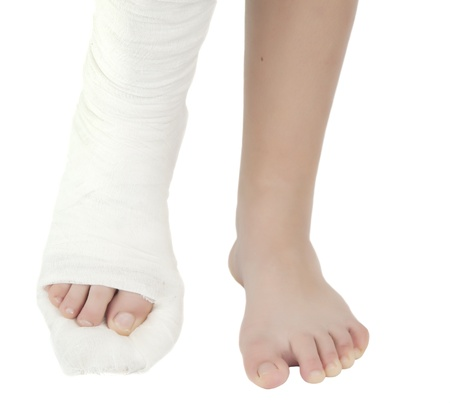 plaster foot: leg in a plaster cast on a white background Stock Photo