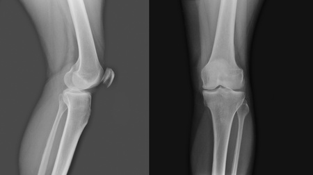 X-ray of both human knee photo