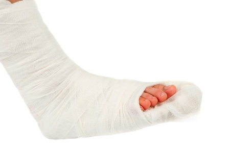 plaster cast: leg in a plaster cast on a white background Stock Photo