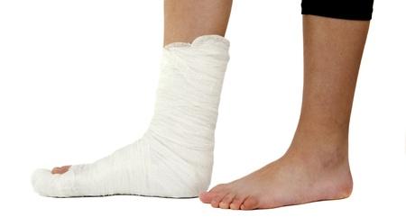 jambe cass�e: la jambe dans le pl�tre sur un fond blanc
