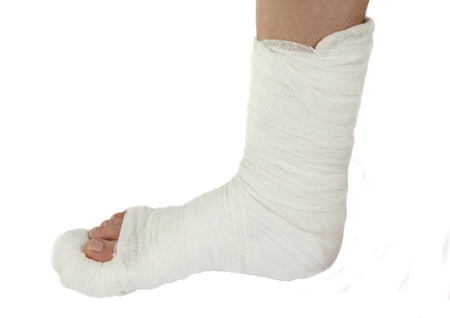 leg in a plaster cast on a white background Stock Photo - 13174650