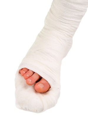 pierna rota: pierna en un molde de yeso sobre un fondo blanco Foto de archivo