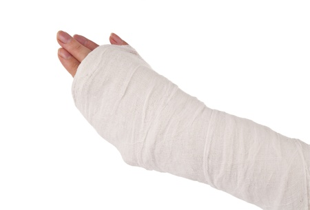 arm in a cast on white background photo