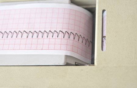 electrocardiograph: electrocardiograph machine with ECG