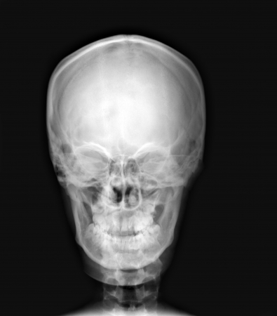 detail of neck and head x-ray image photo