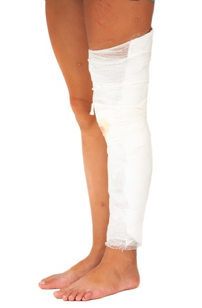 painfully: Legs, one of which was bandaged with a bandage