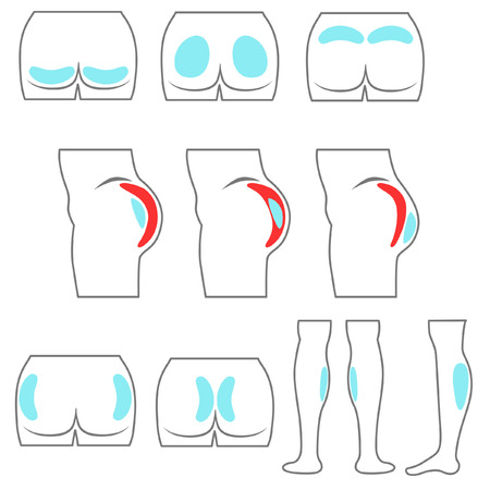 shin: Location buttocks and calf implants in line style Illustration