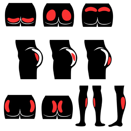 buttocks: Location buttocks and calf implants in glyph style
