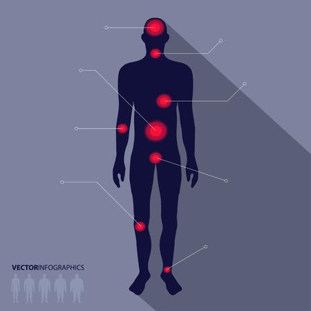 男のシルエット、痛みのポイント。医療のインフォ グラフィック