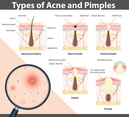 pus: Tipi di acne e brufoli, fasi di sviluppo, illustrazione Vettoriali