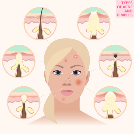 Distressed leather woman, types of acne and pimples, illustration Illustration