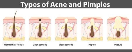 Tipos de acné, la estructura de la espinilla, dibujo detallado, ilustración Vectores