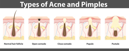 sebaceous gland: Types of acne,  structure of  pimple, detailed drawing, illustration