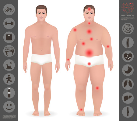 liposuction: Body of a man, thick and thin , pain points, detailed vector, icon, healthy lifestyle, organs