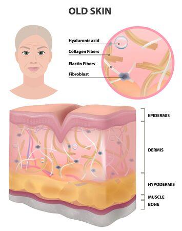 La pelle di una donna anziana, rughe, illustrazione dettagliata, medicina, illustrazione vettoriale