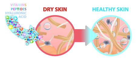 Dry skin enriched with vitamins, nutrition. Healthy skin. Change. Vector illustration Illustration